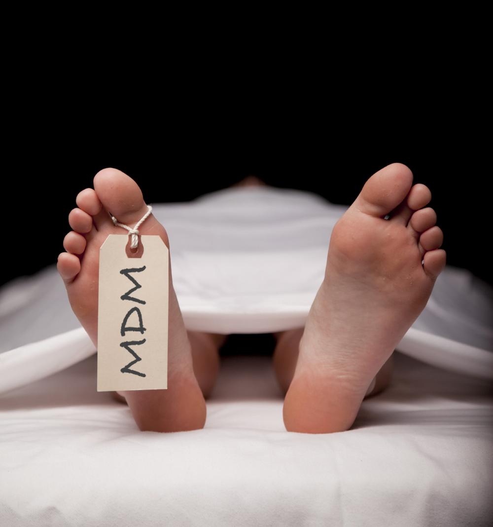 پای مرده